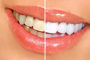 Teeth Whitening In South Fort Worth Warren Dentistry