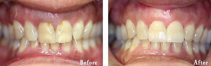 Porcelain Crowns in South Fort Worth | Warren Dentistry