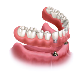 Dentures in South Fort Worth