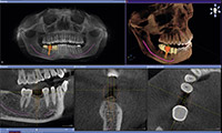 High-Tech Dentistry