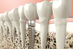 Complimentary Dental Implant Consultation