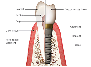 Dental Implants in South Fort Worth