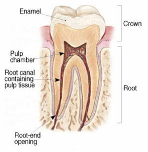 One-Visit Root Canals in South Fort Worth